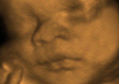 3dface-5