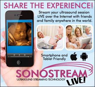 4D ultrasound streaming video to share your 3D ultrasound session with friends and family over the Internet via Sonostream LIVE